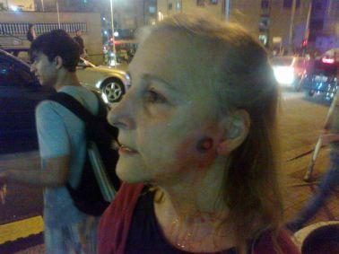 mulher atingida